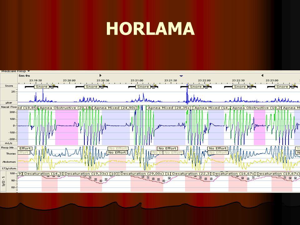 HORLAMA