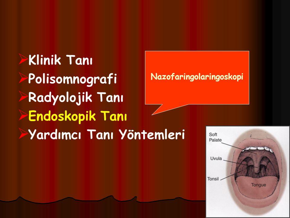 Nazofaringolaringoskopi