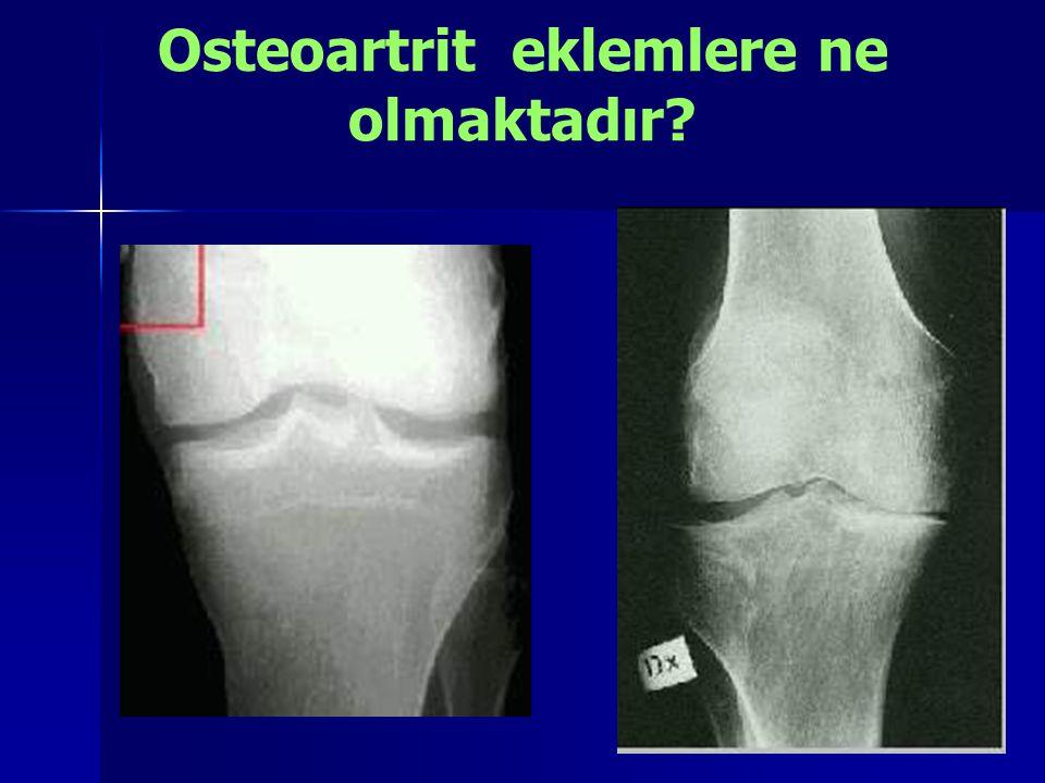 Osteoartrit eklemlere ne olmaktadır