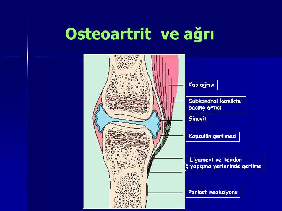 Osteoartrit ve ağrı Kas ağrısı Subkondral kemikte basınç artışı