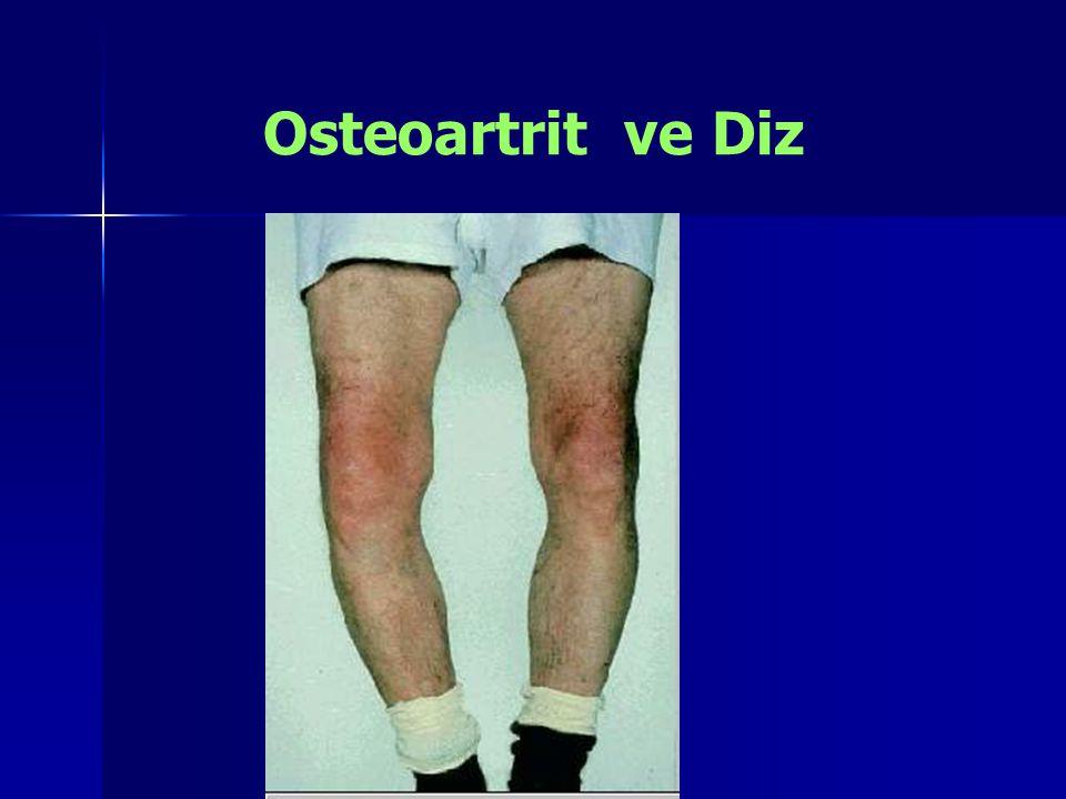 Osteoartrit ve Diz