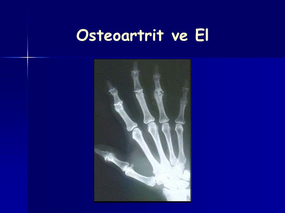 Osteoartrit ve El