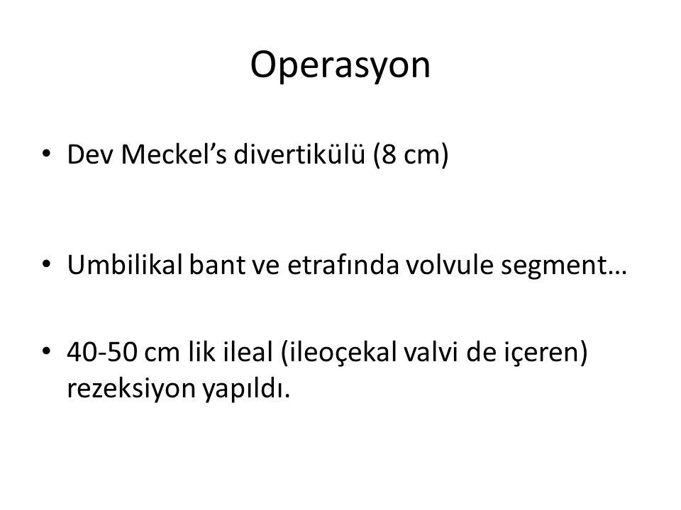 Operasyon Dev Meckel's divertikülü (8 cm)