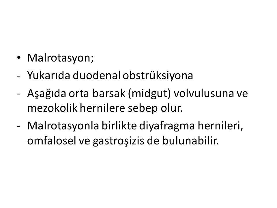 Malrotasyon; Yukarıda duodenal obstrüksiyona. Aşağıda orta barsak (midgut) volvulusuna ve mezokolik hernilere sebep olur.