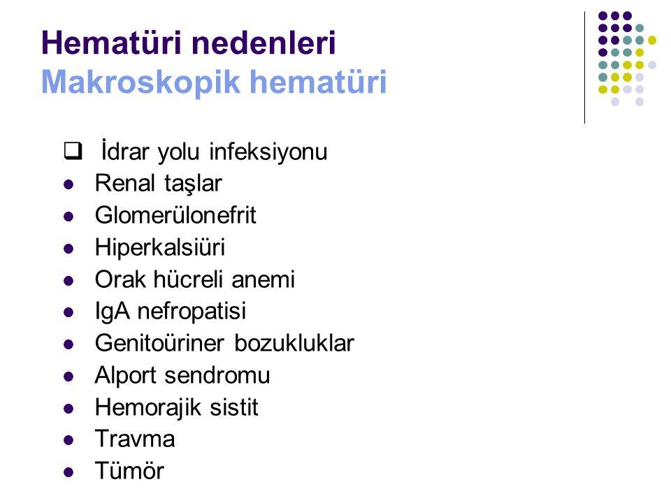 Hematüri nedenleri Makroskopik hematüri