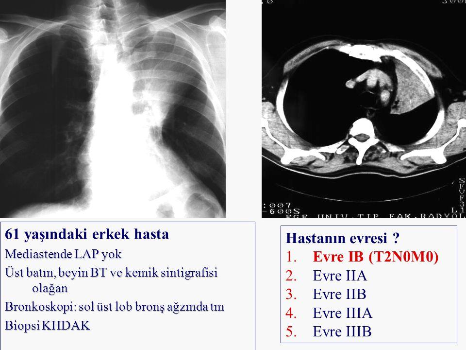 61 yaşındaki erkek hasta Hastanın evresi Evre IB (T2N0M0) Evre IIA