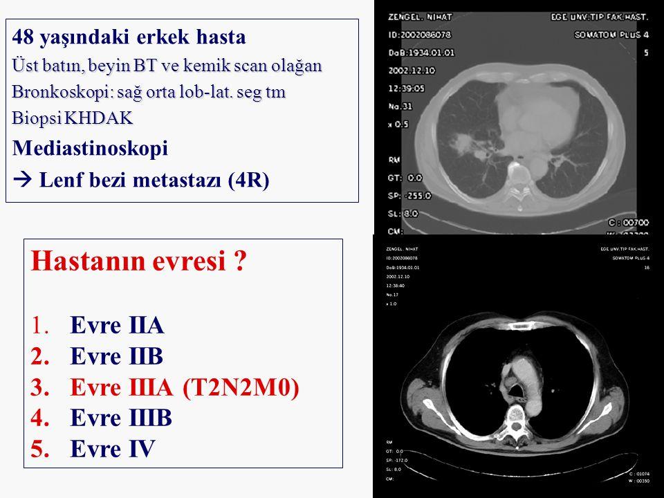 Hastanın evresi Evre IIA Evre IIB Evre IIIA (T2N2M0) Evre IIIB