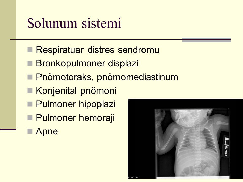 Solunum sistemi Respiratuar distres sendromu Bronkopulmoner displazi