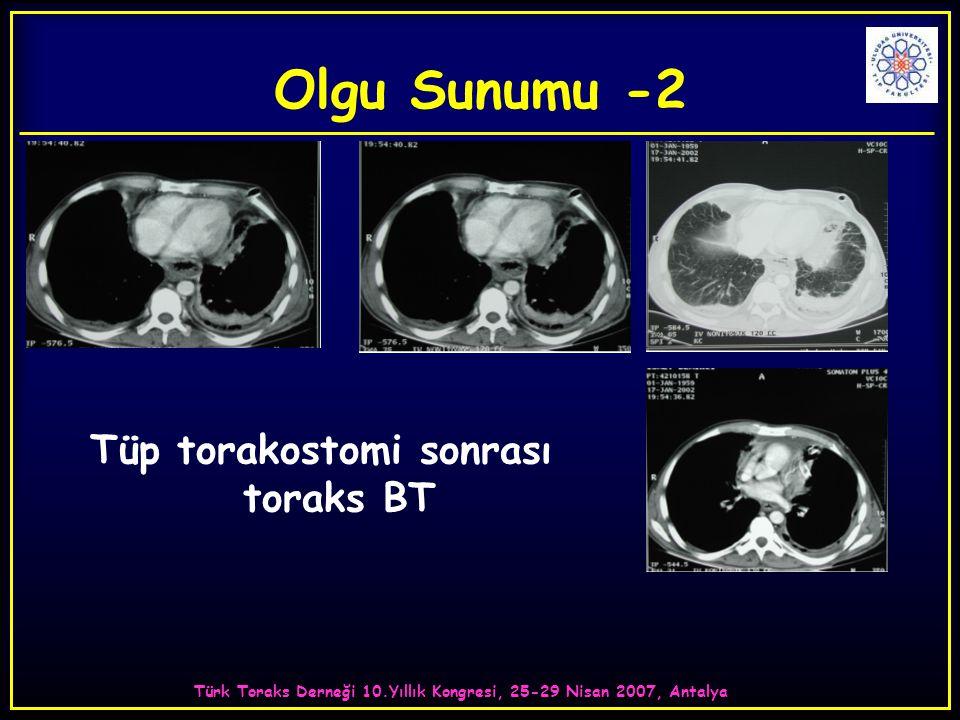 Olgu Sunumu -2 Tüp torakostomi sonrası toraks BT