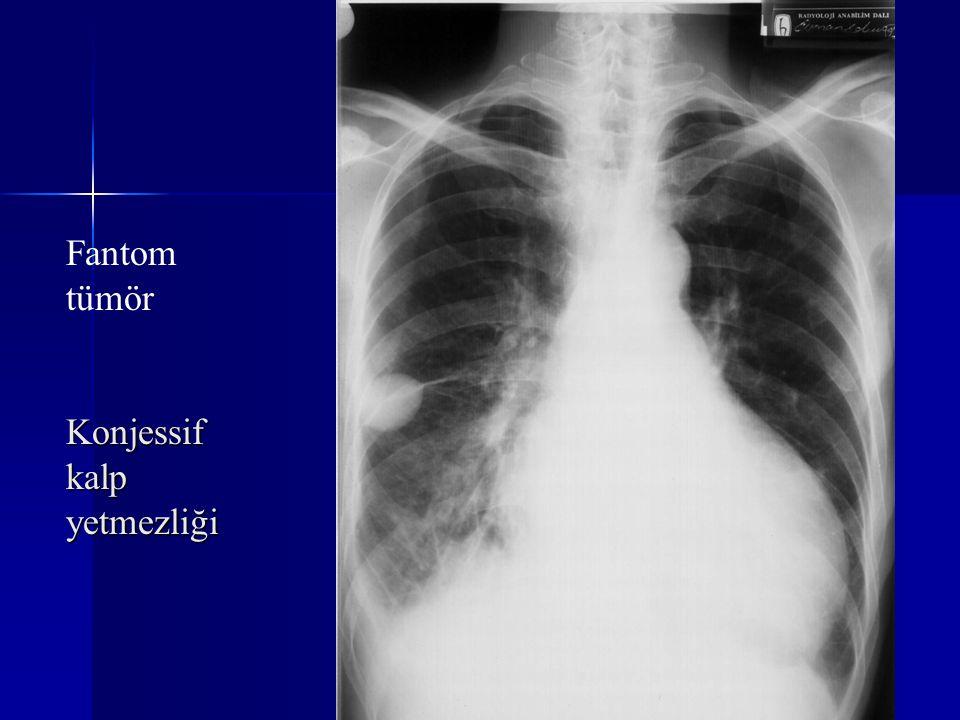 Fantom tümör Konjessif kalp yetmezliği