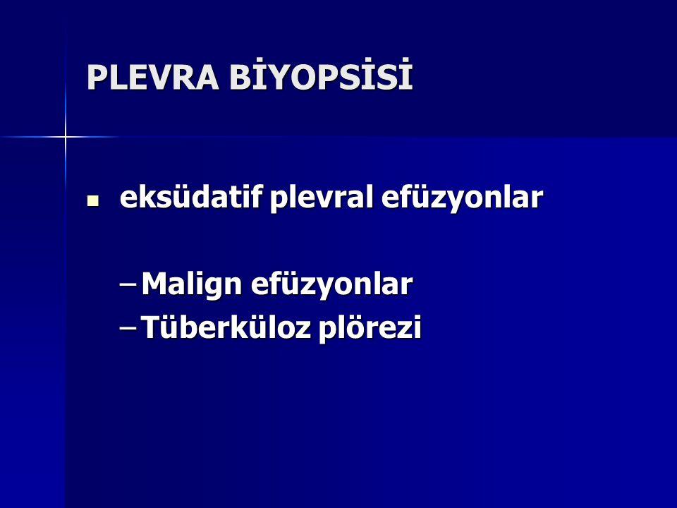 PLEVRA BİYOPSİSİ Malign efüzyonlar Tüberküloz plörezi