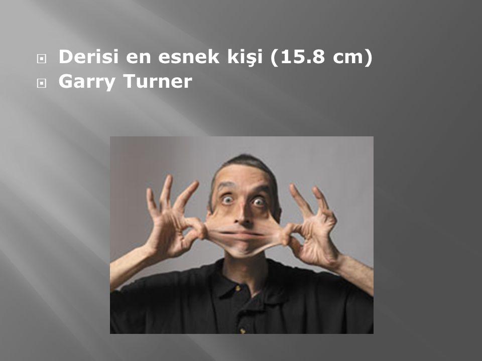 Derisi en esnek kişi (15.8 cm)