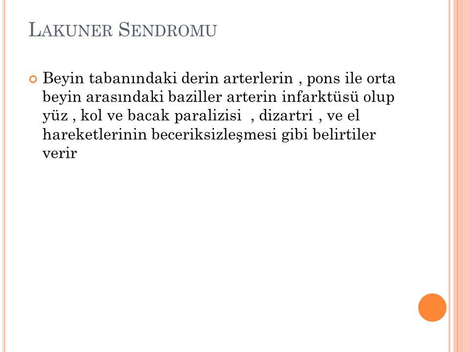 Lakuner Sendromu