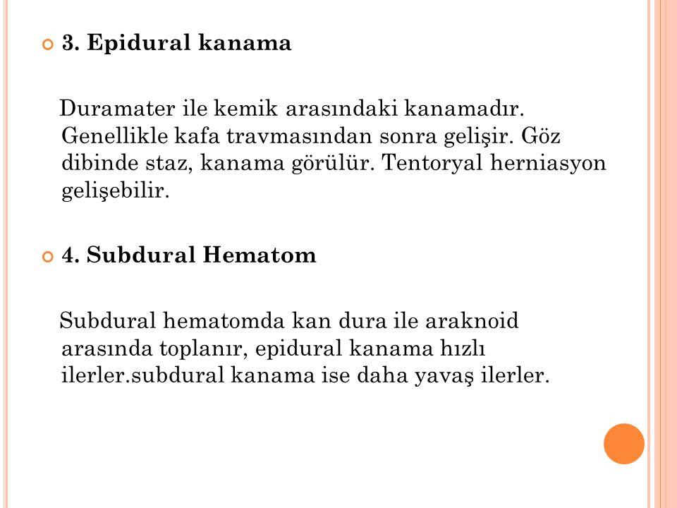 3. Epidural kanama