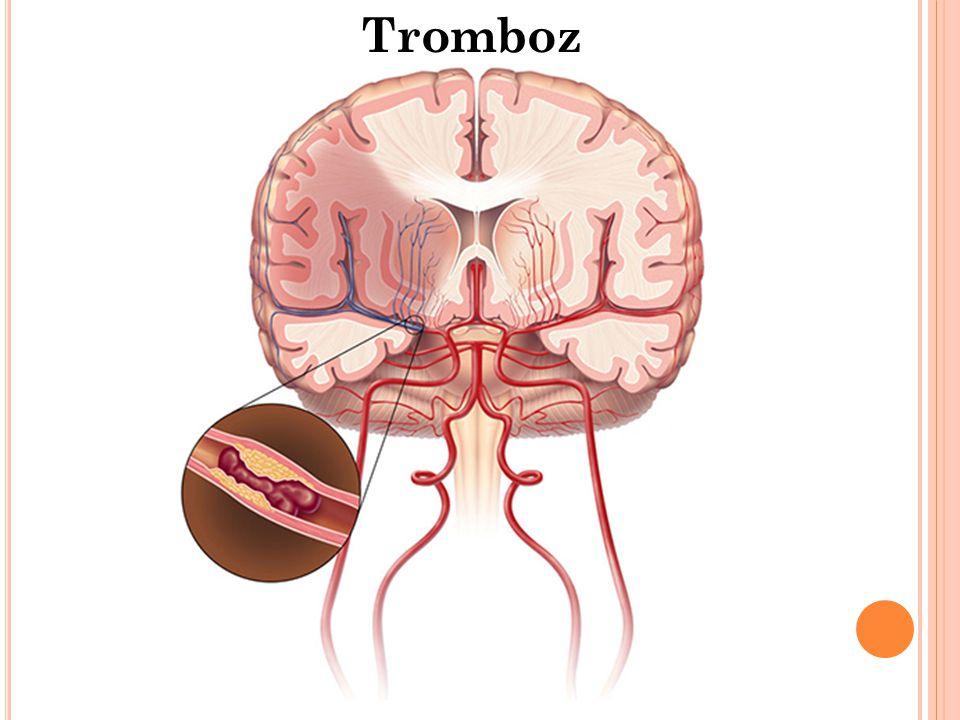 Tromboz