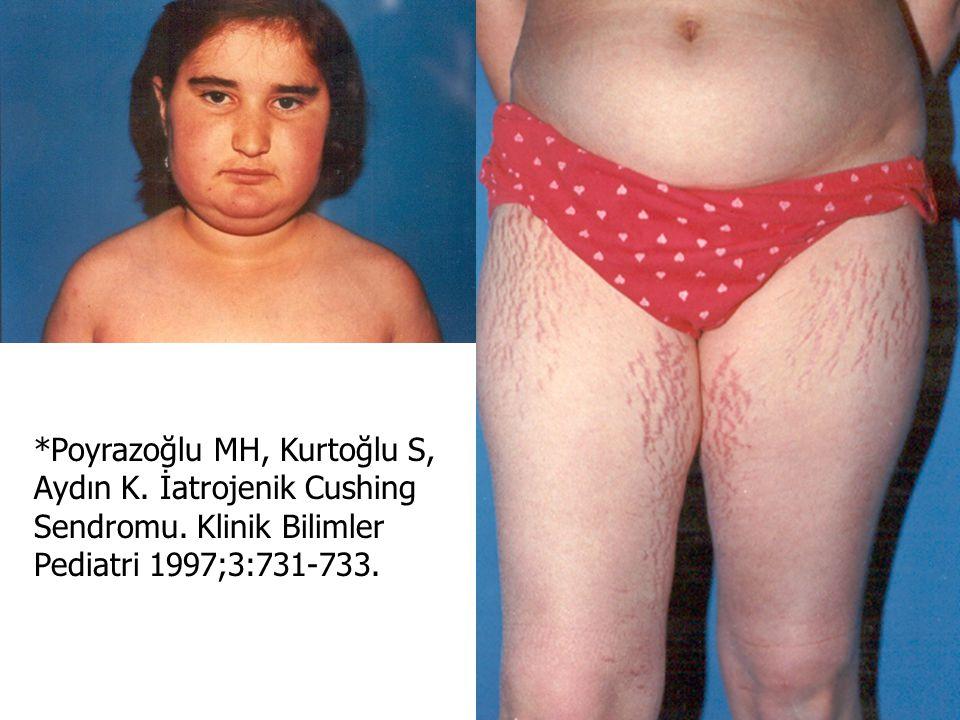 Poyrazoğlu MH, Kurtoğlu S, Aydın K. İatrojenik Cushing Sendromu