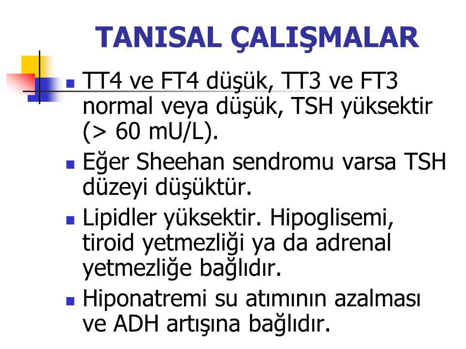 TANISAL ÇALIŞMALAR TT4 ve FT4 düşük, TT3 ve FT3 normal veya düşük, TSH yüksektir (> 60 mU/L). Eğer Sheehan sendromu varsa TSH düzeyi düşüktür.