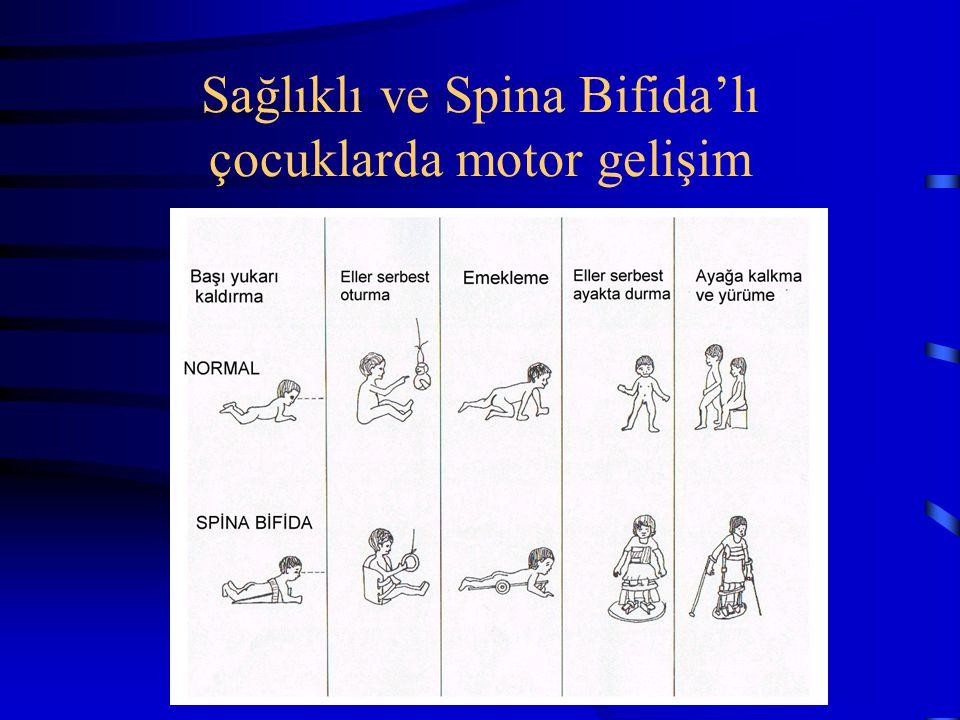 Sağlıklı ve Spina Bifida'lı çocuklarda motor gelişim