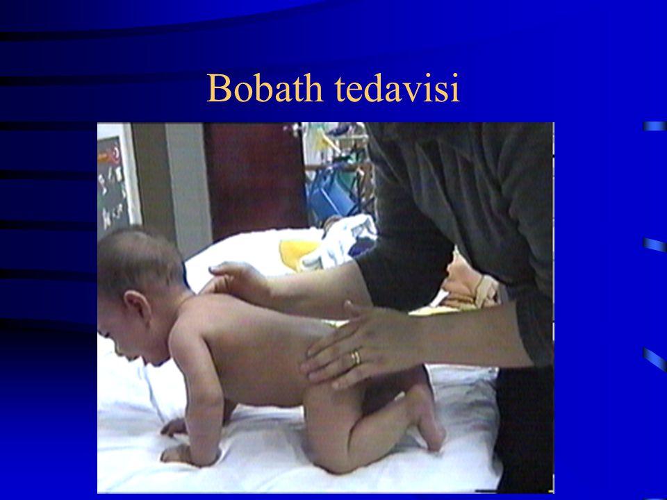 Bobath tedavisi