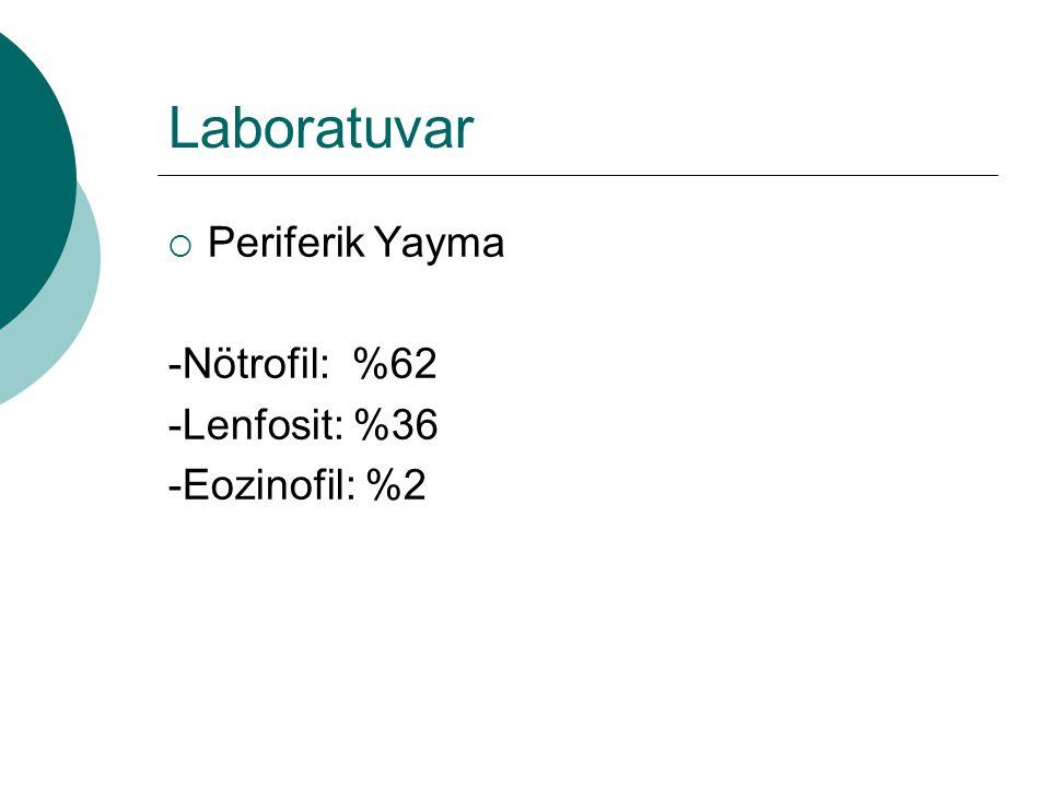 Laboratuvar Periferik Yayma -Nötrofil: %62 -Lenfosit: %36