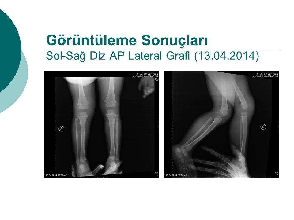 Görüntüleme Sonuçları Sol-Sağ Diz AP Lateral Grafi (13.04.2014)