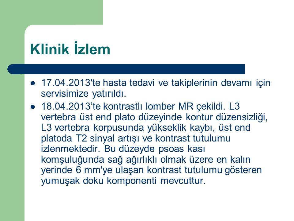 Klinik İzlem 17.04.2013 te hasta tedavi ve takiplerinin devamı için servisimize yatırıldı.