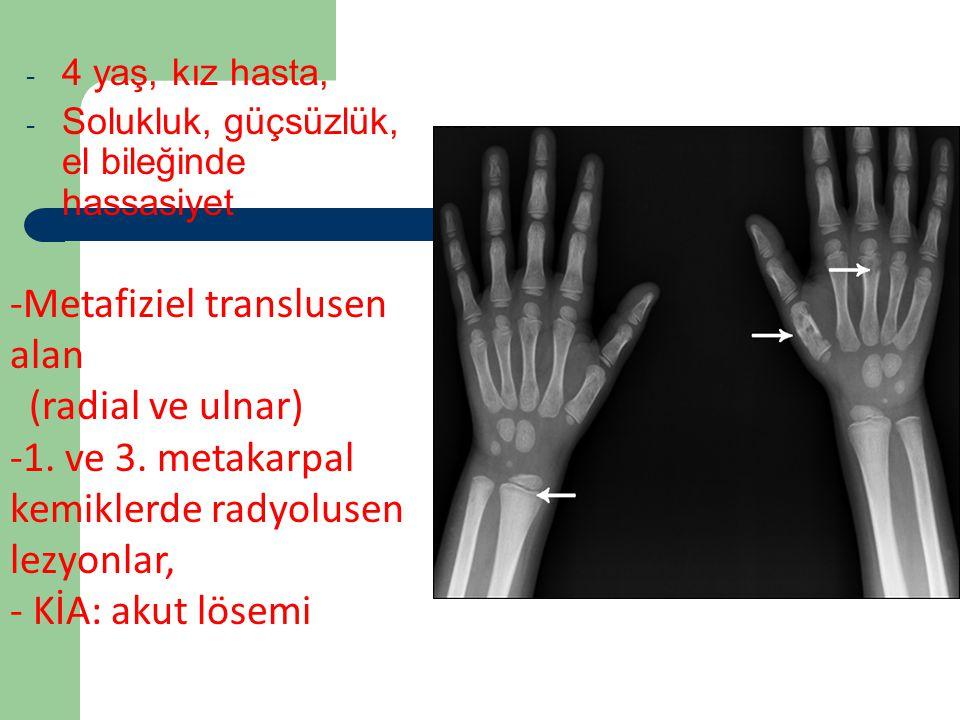 Vaka 2 Metafiziel translusen alan (radial ve ulnar)