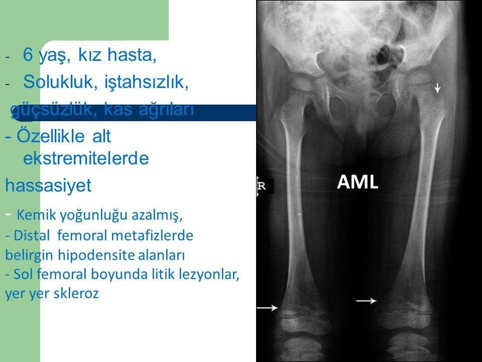 Vaka 4 AML Kemik yoğunluğu azalmış, 6 yaş, kız hasta,