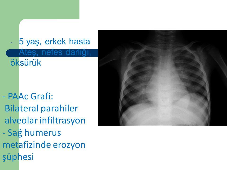 Vaka 5 PAAc Grafi: Bilateral parahiler alveolar infiltrasyon