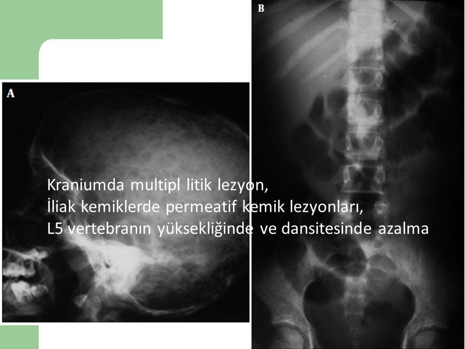 Vaka 9 Kraniumda multipl litik lezyon,