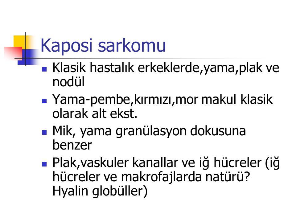 Kaposi sarkomu Klasik hastalık erkeklerde,yama,plak ve nodül
