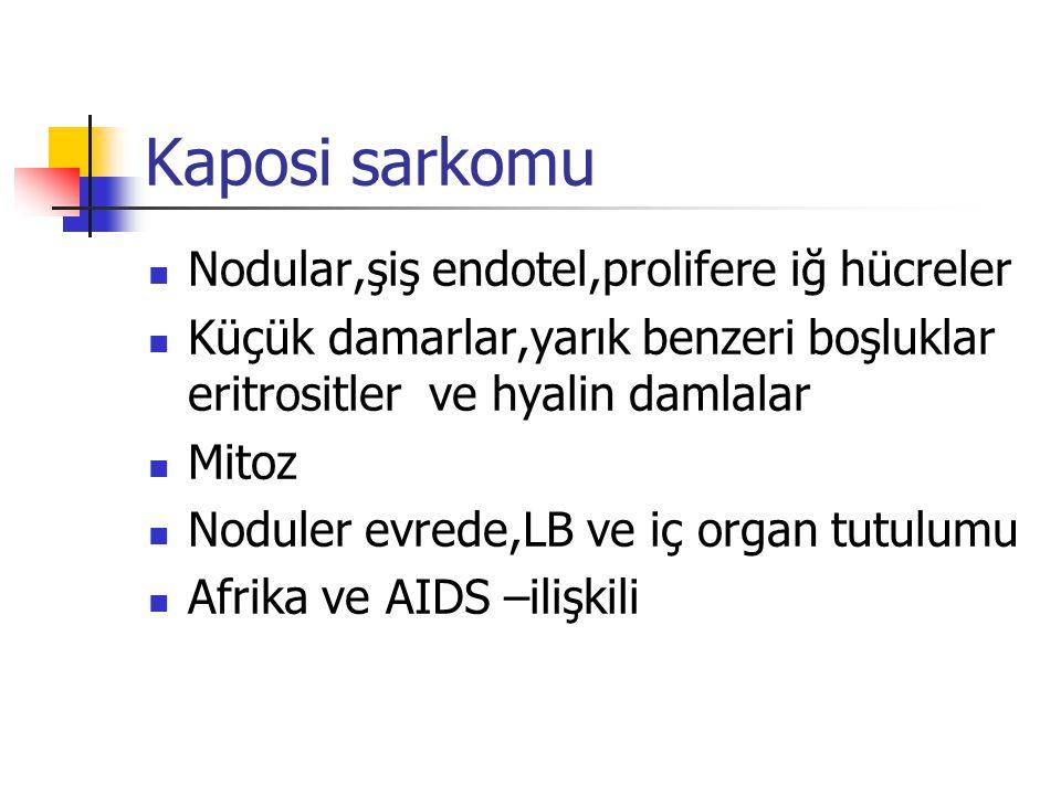 Kaposi sarkomu Nodular,şiş endotel,prolifere iğ hücreler