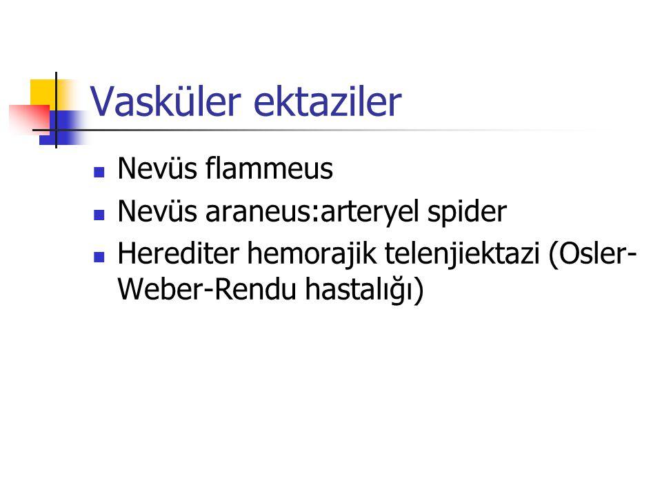 Vasküler ektaziler Nevüs flammeus Nevüs araneus:arteryel spider
