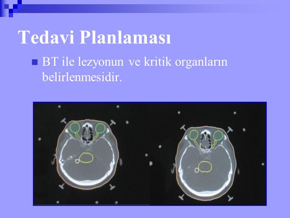 Tedavi Planlaması BT ile lezyonun ve kritik organların belirlenmesidir.