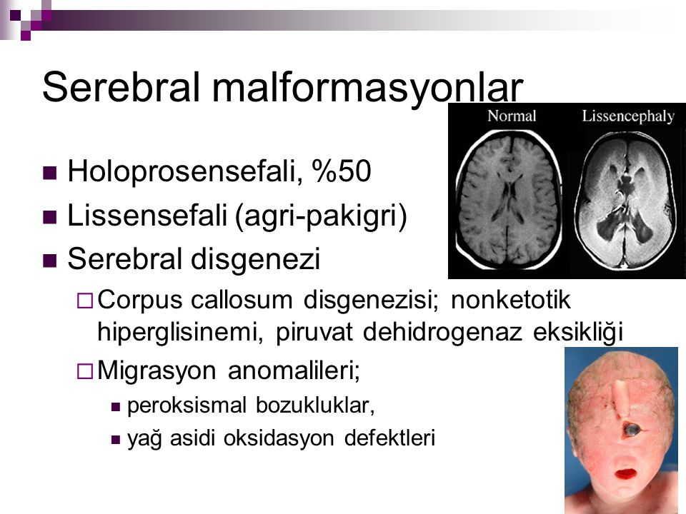 Serebral malformasyonlar
