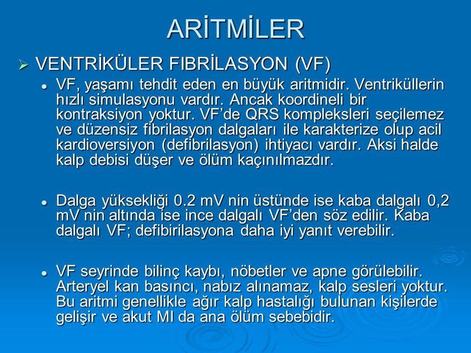ARİTMİLER VENTRİKÜLER FIBRİLASYON (VF)