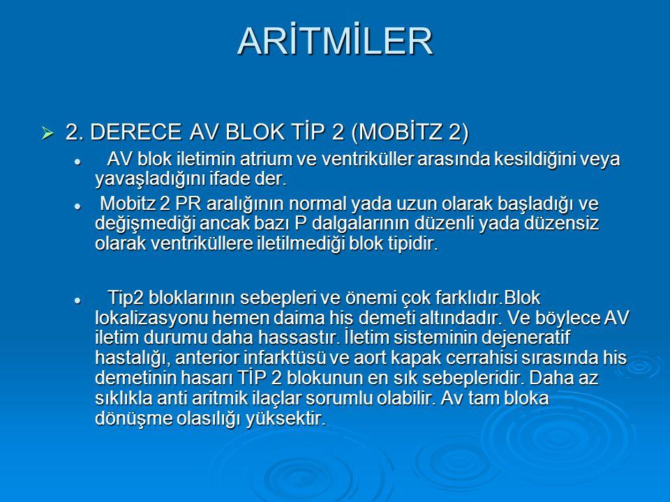 ARİTMİLER 2. DERECE AV BLOK TİP 2 (MOBİTZ 2)