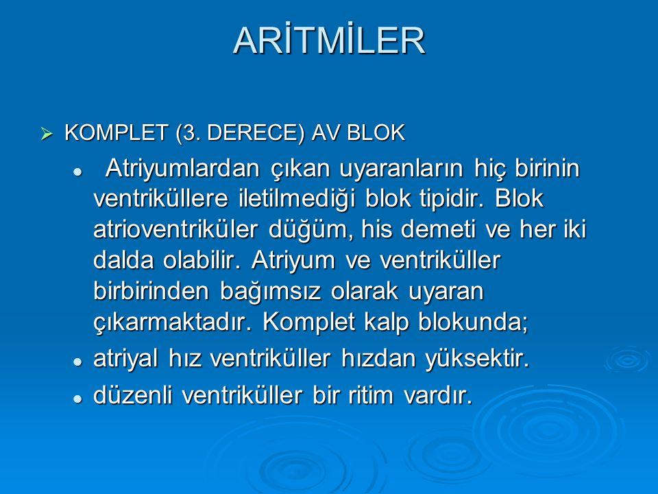 ARİTMİLER KOMPLET (3. DERECE) AV BLOK.