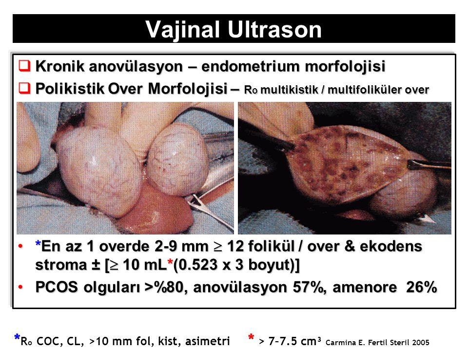 Vajinal Ultrason Kronik anovülasyon – endometrium morfolojisi