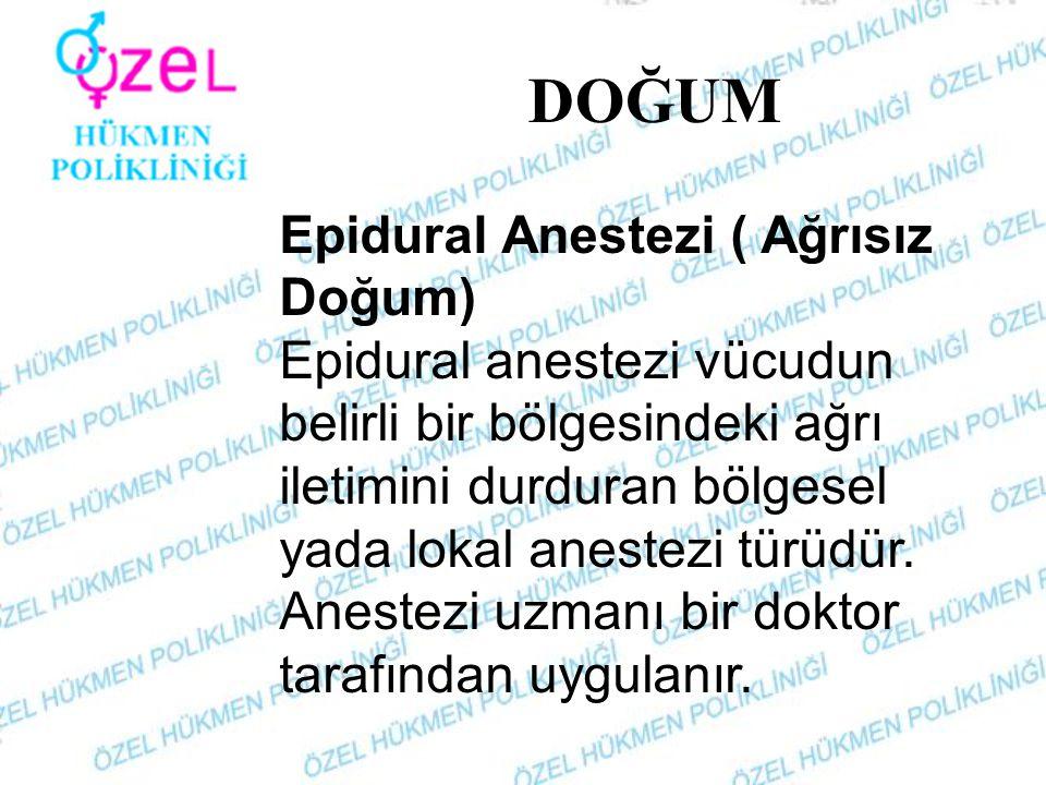 DOĞUM Epidural Anestezi ( Ağrısız Doğum)