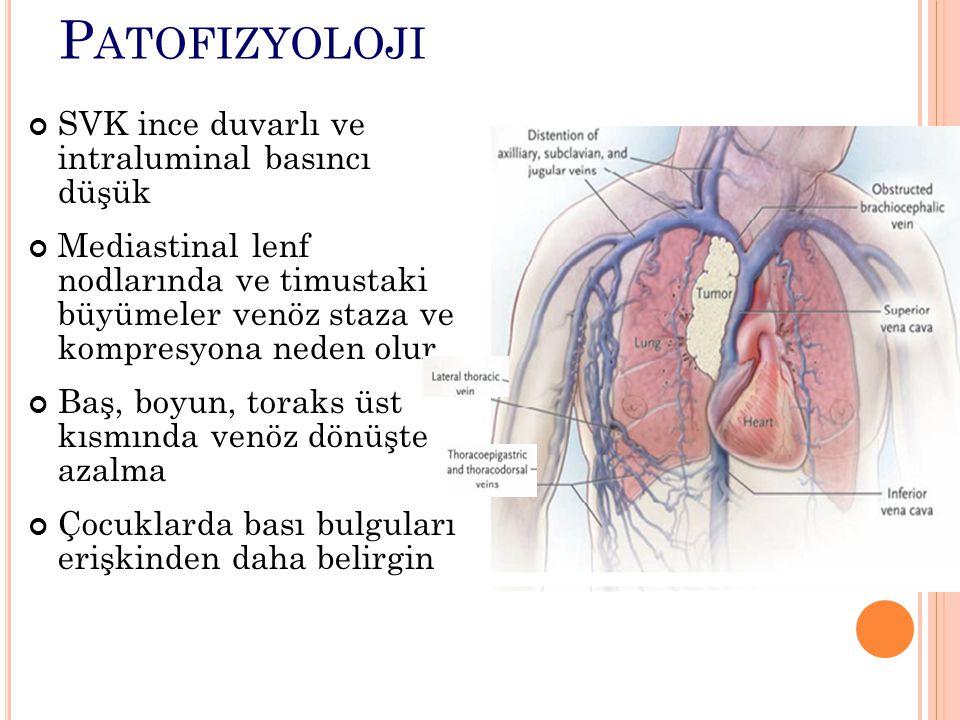 Patofizyoloji SVK ince duvarlı ve intraluminal basıncı düşük