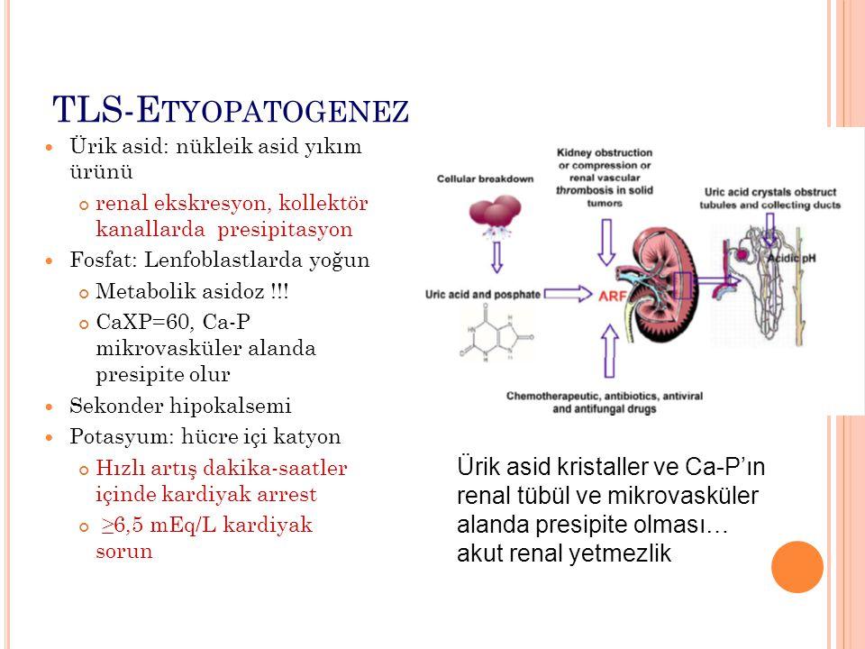 TLS-Etyopatogenez Ürik asid: nükleik asid yıkım ürünü. renal ekskresyon, kollektör kanallarda presipitasyon.