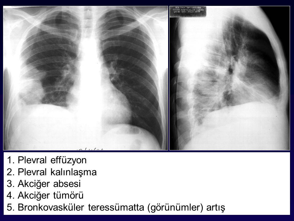 Plevral effüzyon Plevral kalınlaşma. Akciğer absesi.