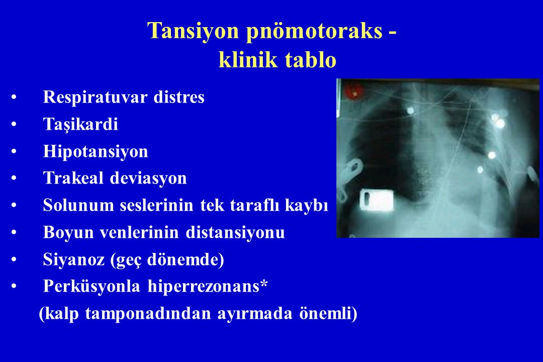 Tansiyon pnömotoraks - klinik tablo