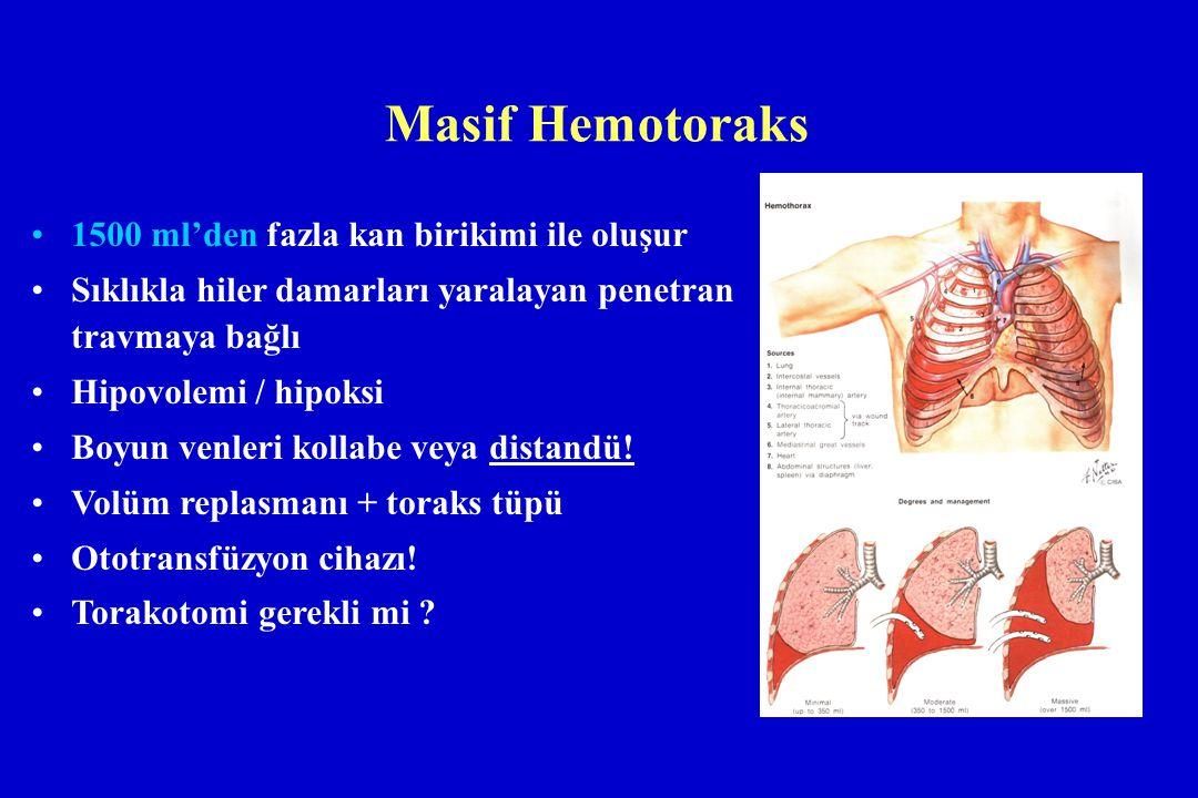 Masif Hemotoraks 1500 ml'den fazla kan birikimi ile oluşur