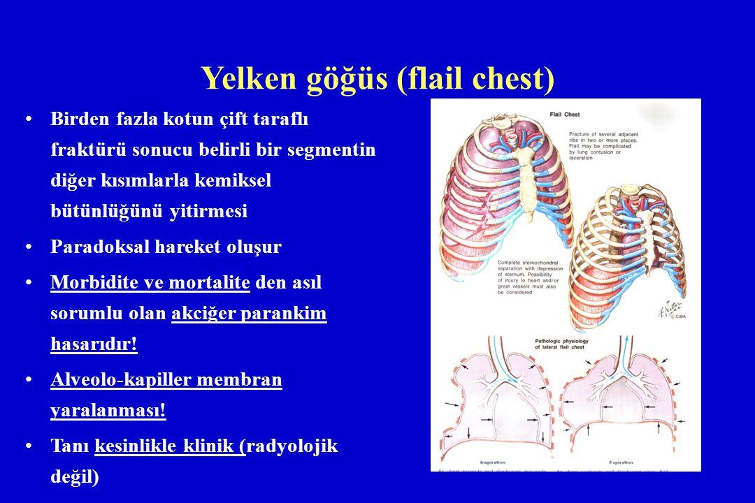 Yelken göğüs (flail chest)