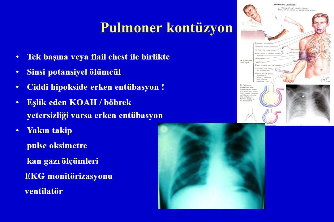 Pulmoner kontüzyon Tek başına veya flail chest ile birlikte