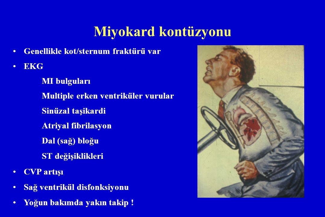 Miyokard kontüzyonu Genellikle kot/sternum fraktürü var EKG