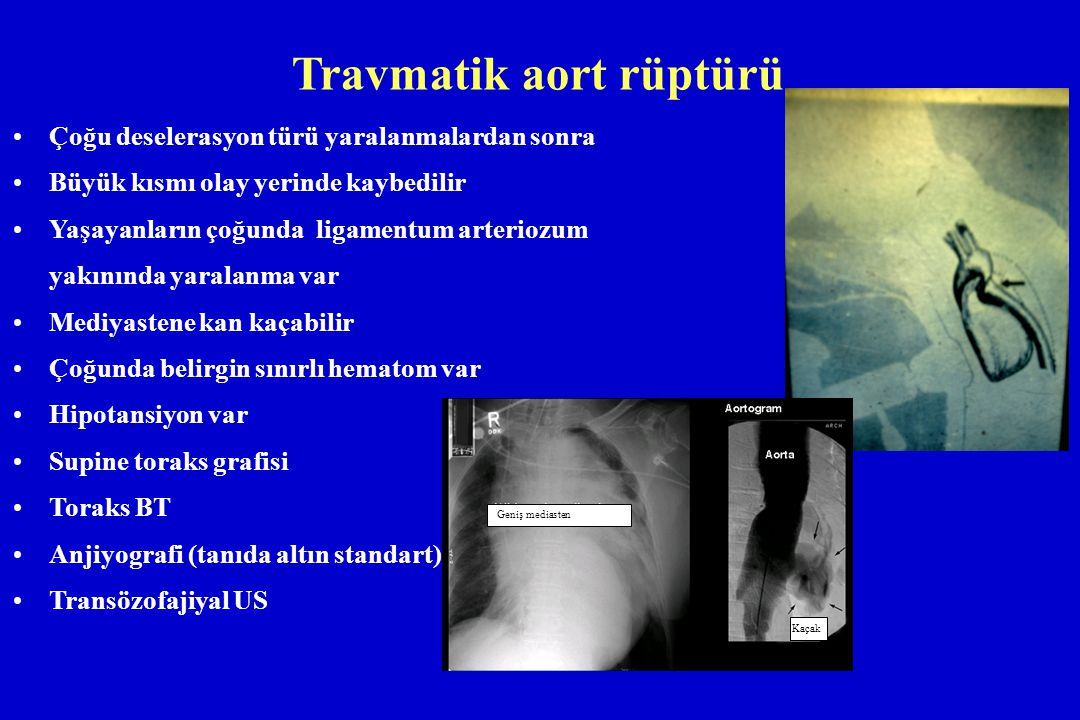 Travmatik aort rüptürü