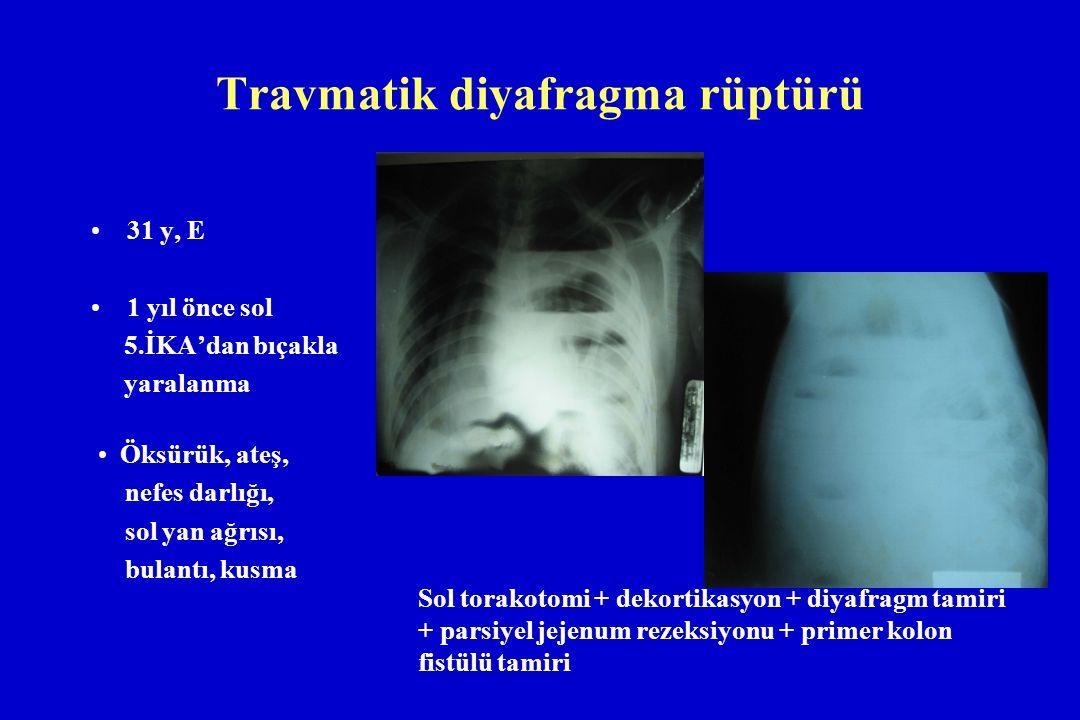 Travmatik diyafragma rüptürü